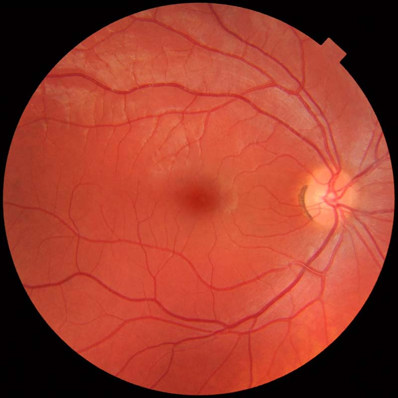 Fundus_photograph_of_normal_right_eye